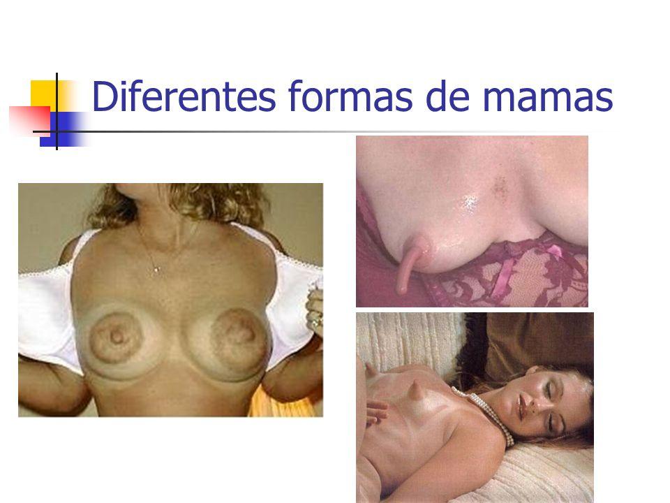 Diferentes formas de mamas