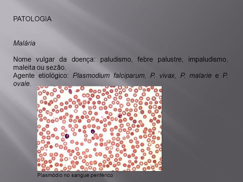 PATOLOGIAMalária. Nome vulgar da doença: paludismo, febre palustre, impaludismo, maleita ou sezão.