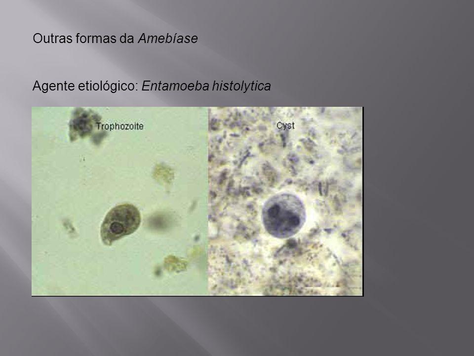 Outras formas da Amebíase
