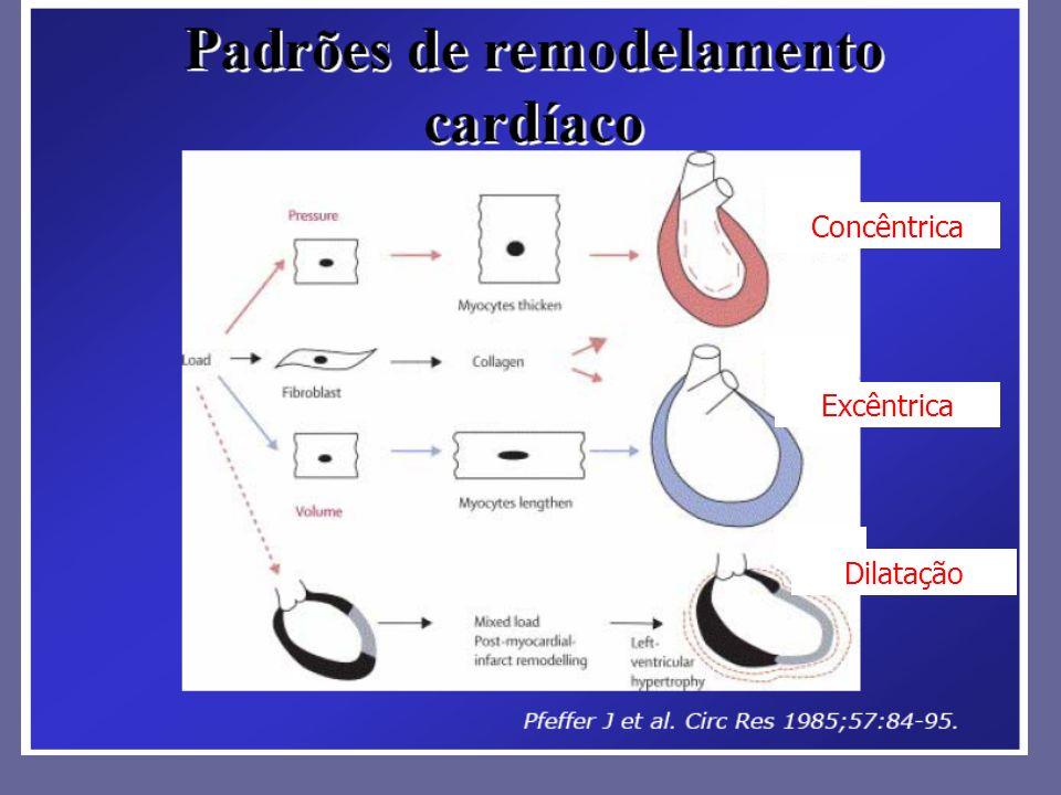 Concêntrica Excêntrica Dilatação