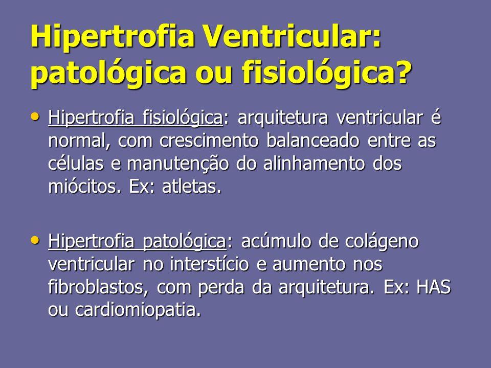 Hipertrofia Ventricular: patológica ou fisiológica