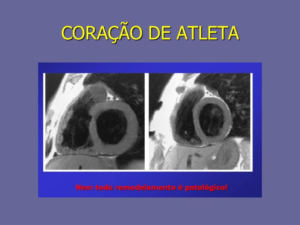 CORAÇÃO DE ATLETA