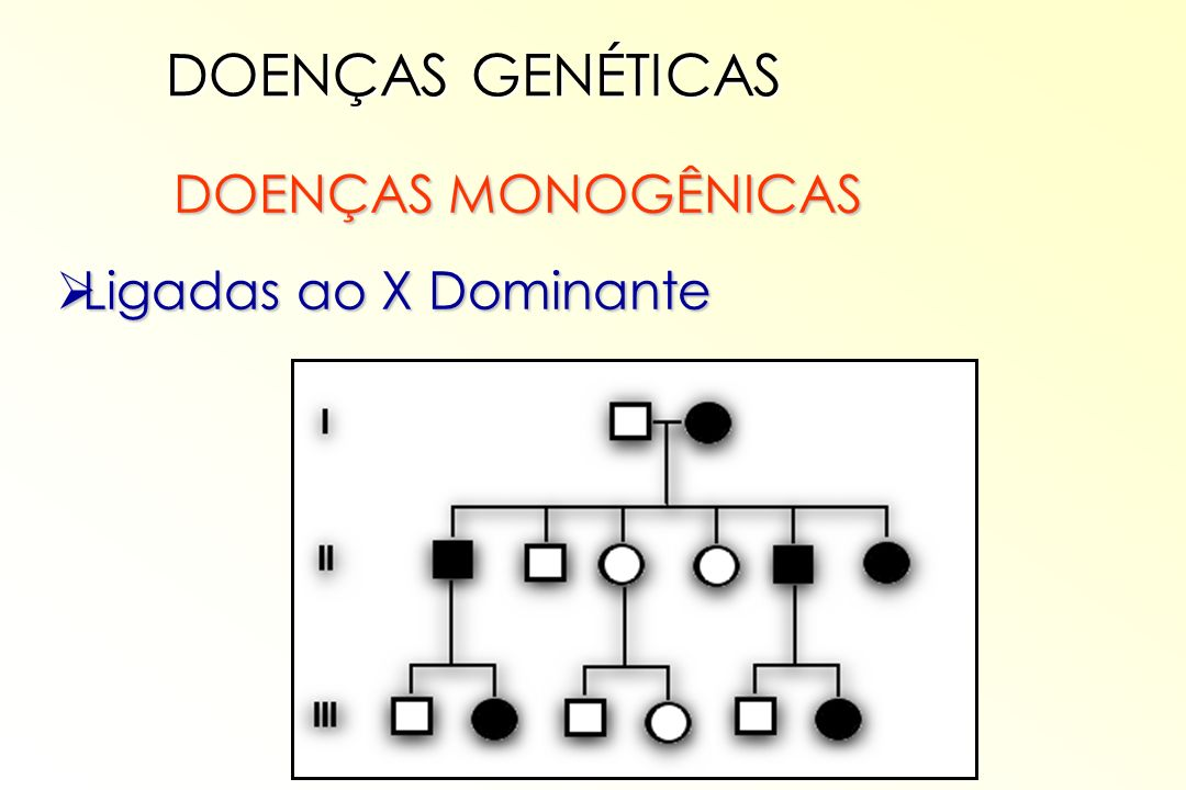 DOENÇAS GENÉTICAS DOENÇAS MONOGÊNICAS Ligadas ao X Dominante