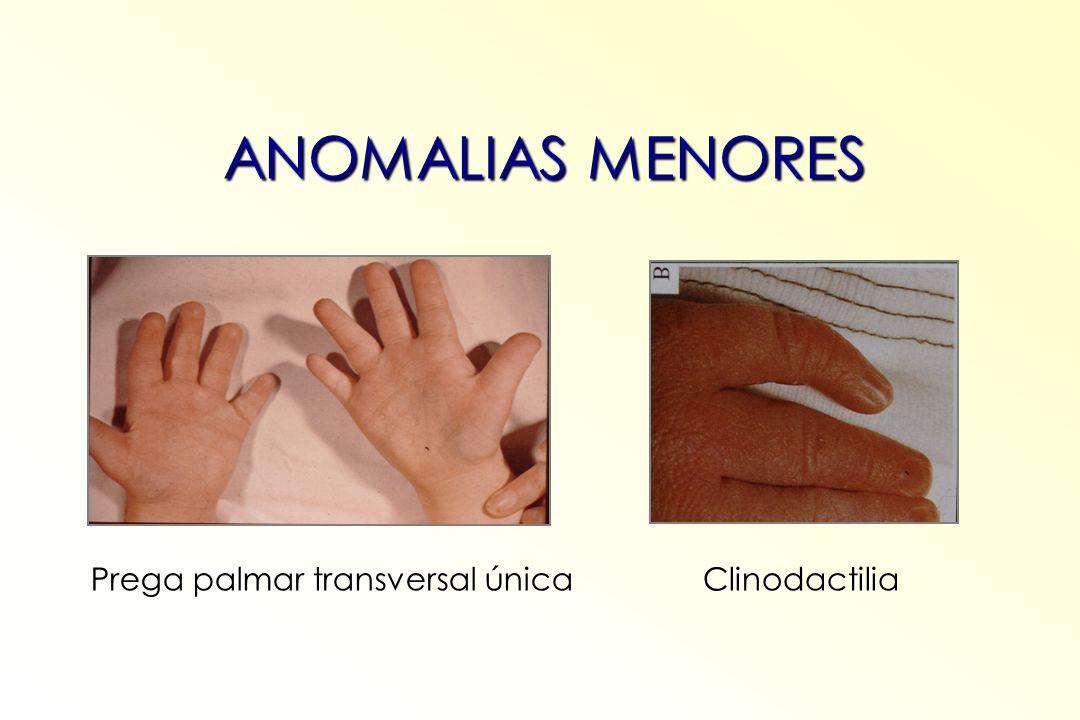 ANOMALIAS MENORES Prega palmar transversal única Clinodactilia