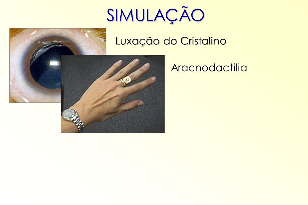 SIMULAÇÃO Luxação do Cristalino Aracnodactilia