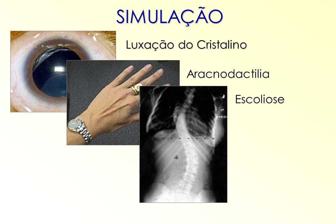 SIMULAÇÃO Luxação do Cristalino Aracnodactilia Escoliose