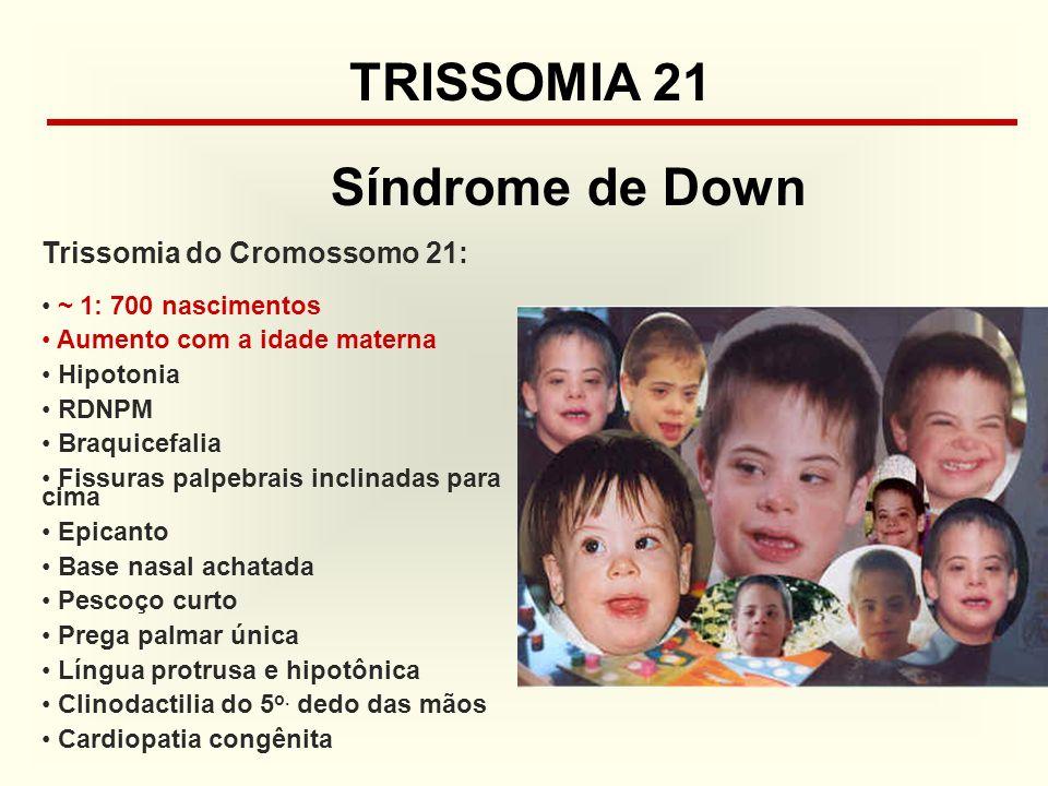 TRISSOMIA 21 Síndrome de Down Trissomia do Cromossomo 21: