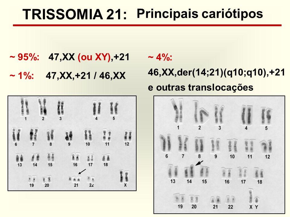 TRISSOMIA 21: Principais cariótipos ~ 95%: 47,XX (ou XY),+21 ~ 4%: