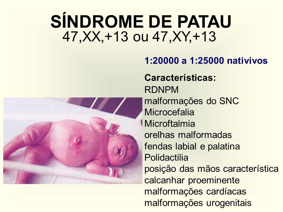 SÍNDROME DE PATAU 47,XX,+13 ou 47,XY,+13 1:20000 a 1:25000 nativivos