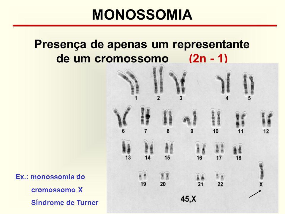 Presença de apenas um representante de um cromossomo (2n - 1)