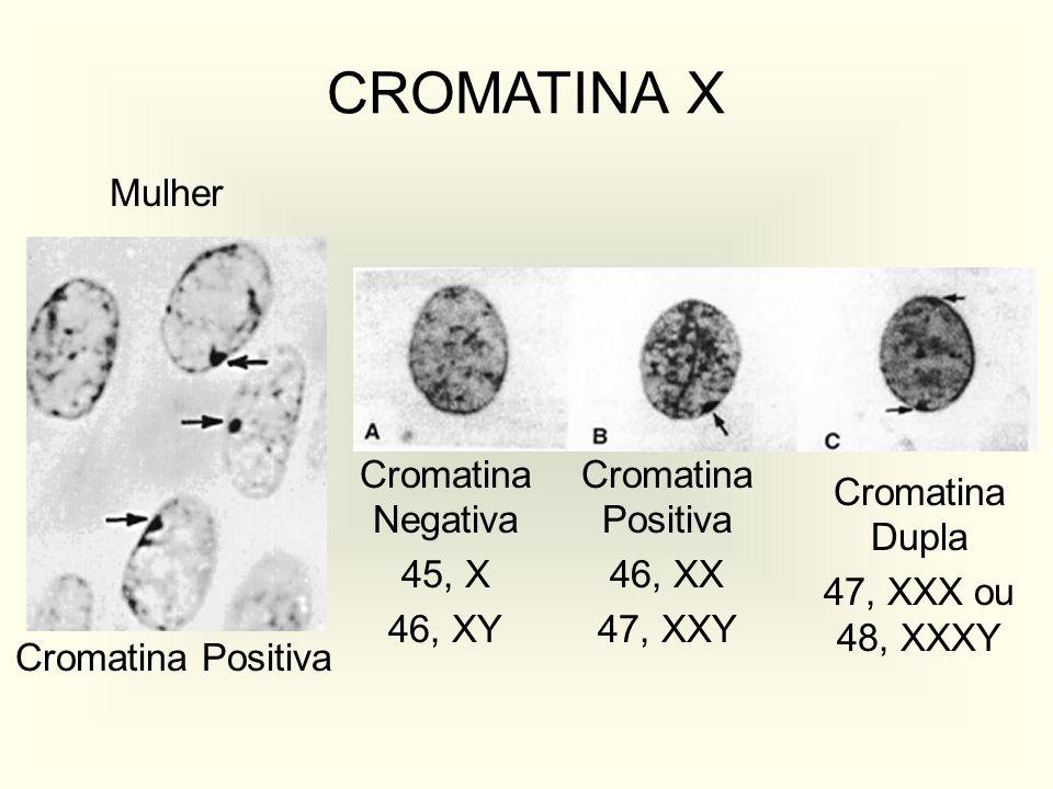 CROMATINA X Mulher Cromatina Negativa 45, X 46, XY Cromatina Positiva