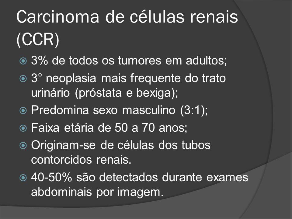 Carcinoma de células renais (CCR)