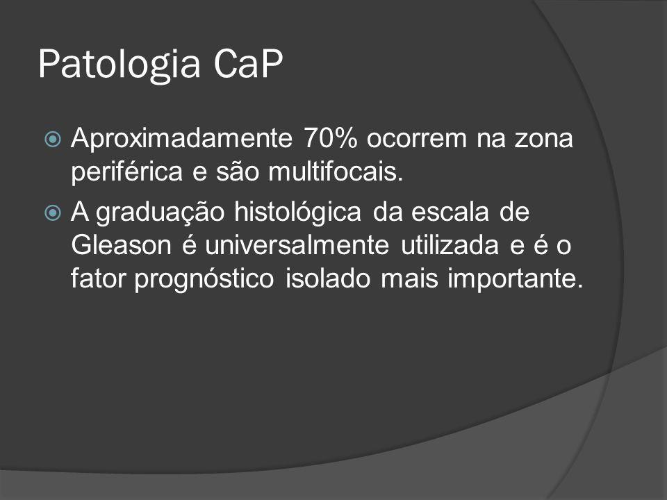Patologia CaP Aproximadamente 70% ocorrem na zona periférica e são multifocais.