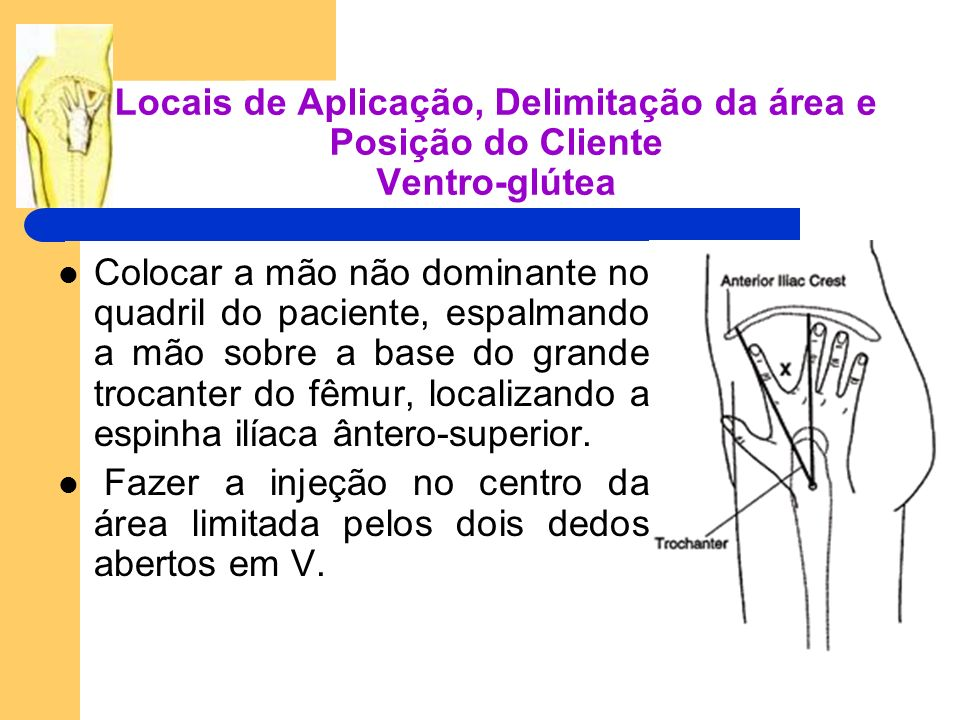 Locais de Aplicação, Delimitação da área e Posição do Cliente Ventro-glútea