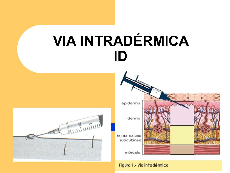 VIA INTRADÉRMICA ID