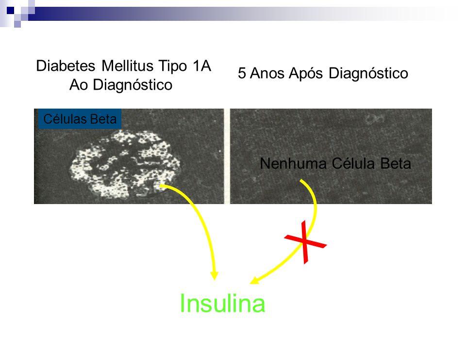 X Insulina Diabetes Mellitus Tipo 1A 5 Anos Após Diagnóstico
