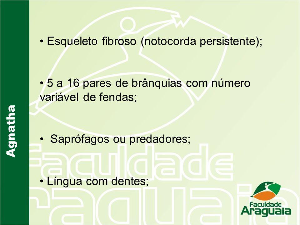 Esqueleto fibroso (notocorda persistente);