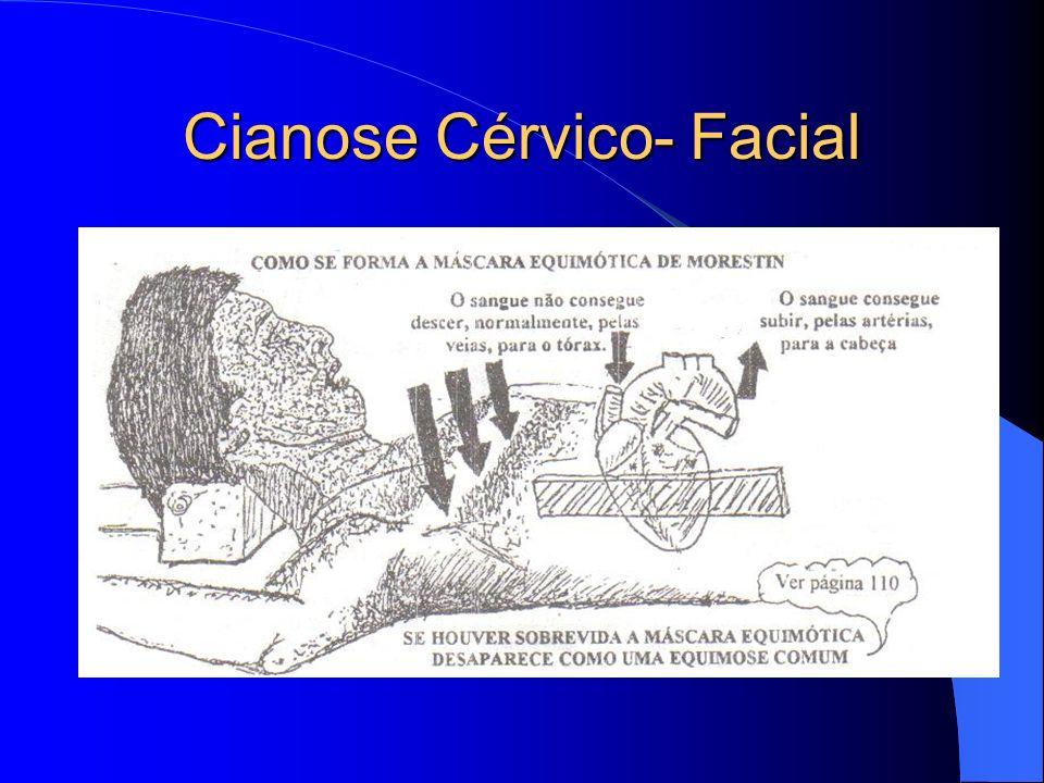 Cianose Cérvico- Facial