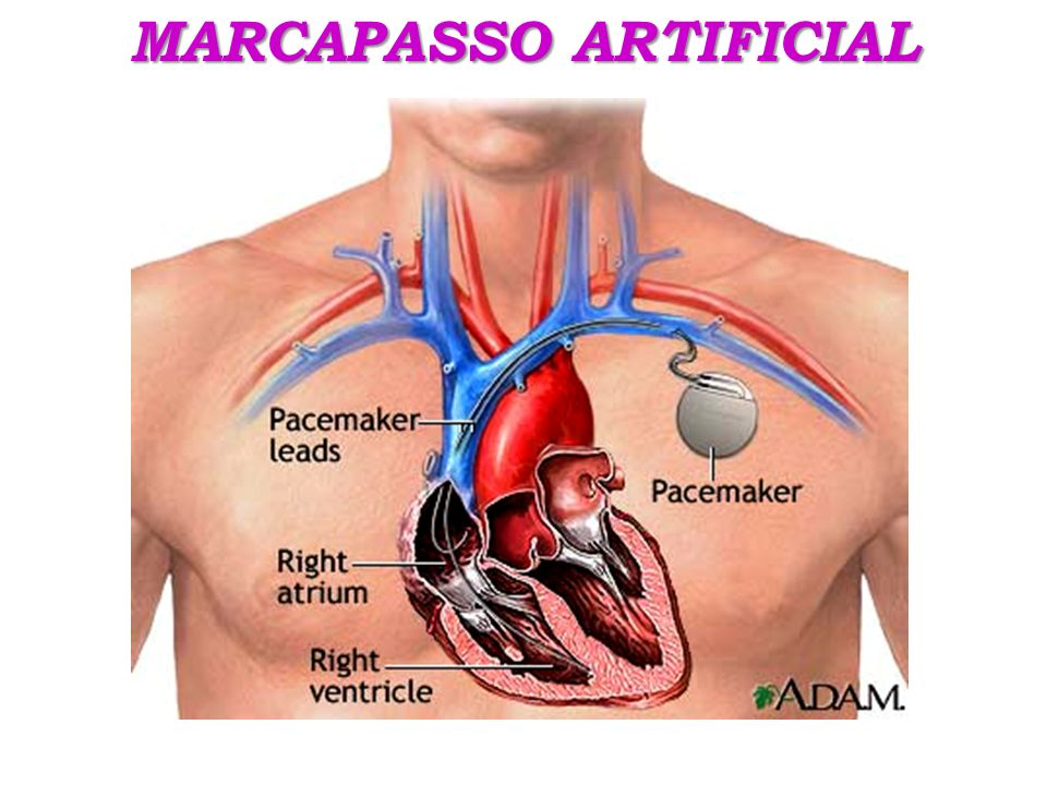 MARCAPASSO ARTIFICIAL