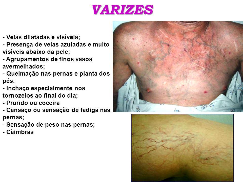 VARIZES - Veias dilatadas e visíveis;