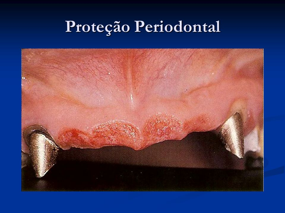 Proteção Periodontal