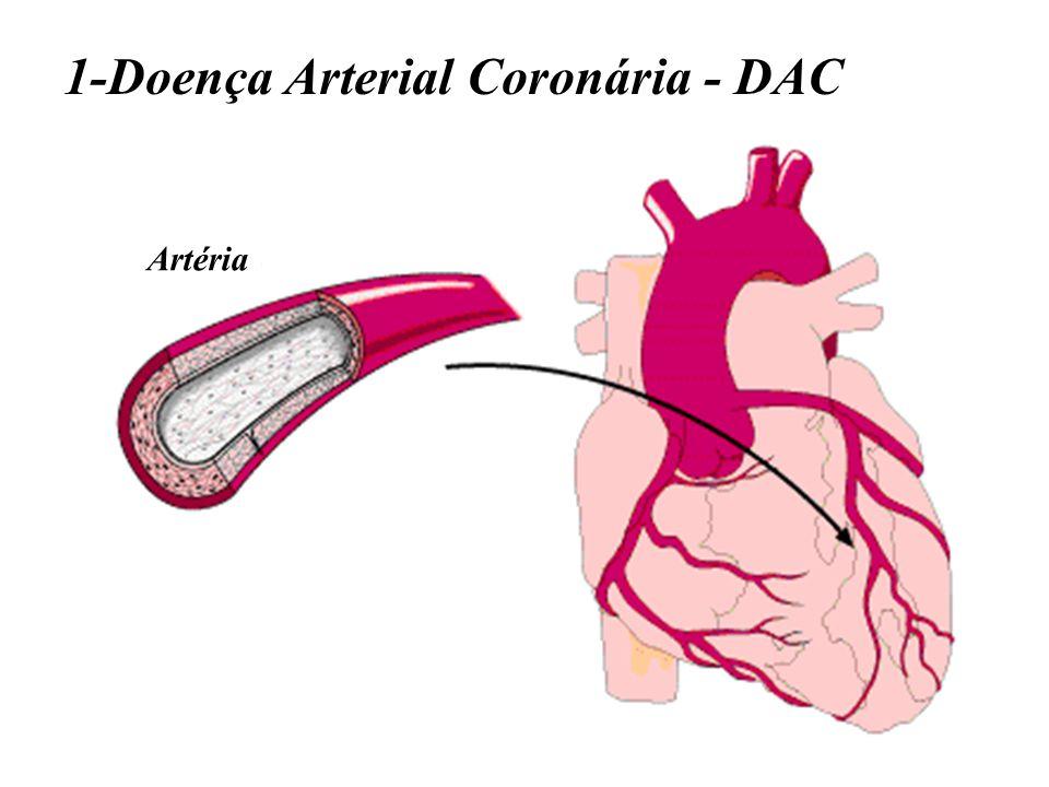 1-Doença Arterial Coronária - DAC