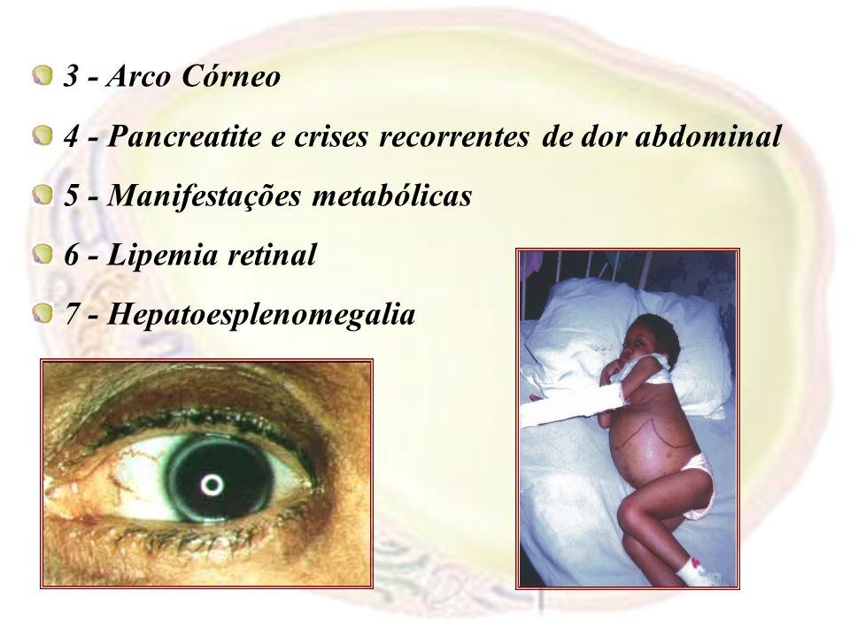 3 - Arco Córneo 4 - Pancreatite e crises recorrentes de dor abdominal. 5 - Manifestações metabólicas.