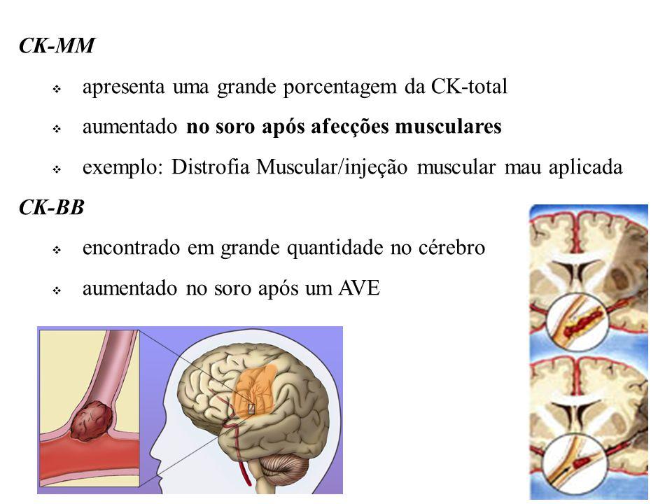 CK-MM apresenta uma grande porcentagem da CK-total. aumentado no soro após afecções musculares.