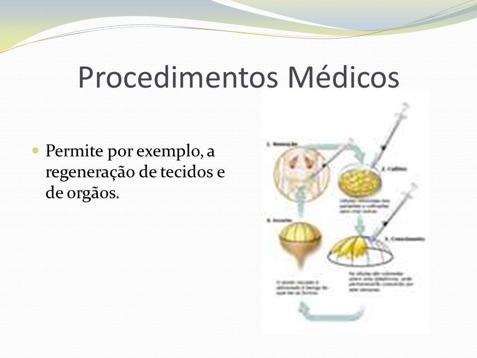 Procedimentos Médicos
