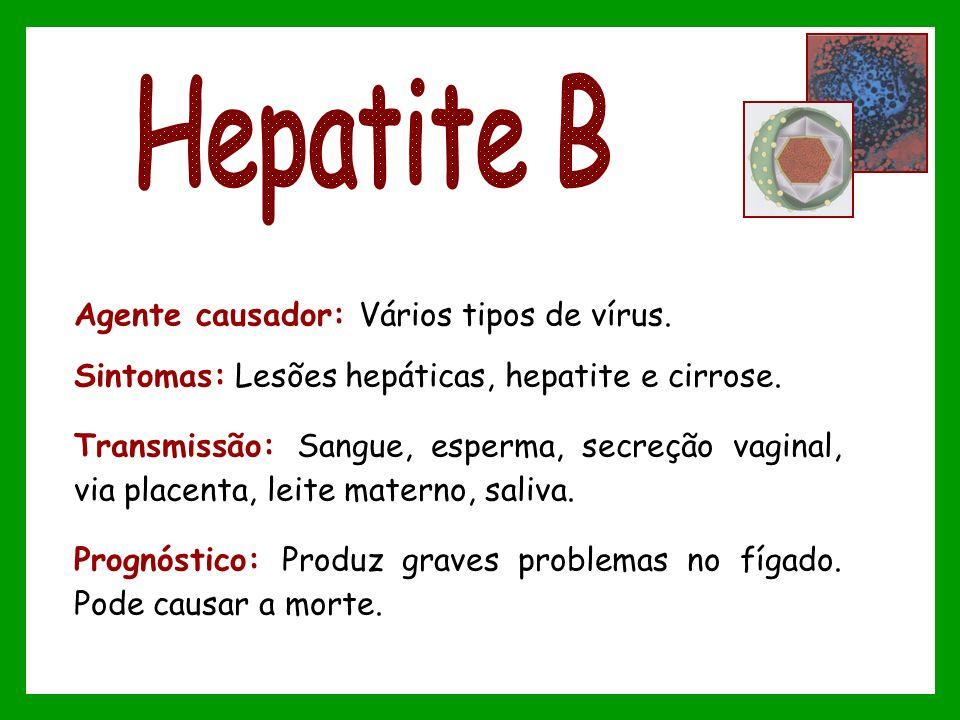 Hepatite B Agente causador: Vários tipos de vírus.