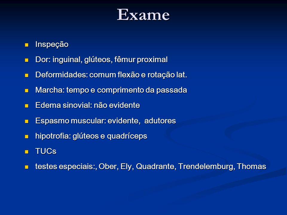 Exame Inspeção Dor: inguinal, glúteos, fêmur proximal