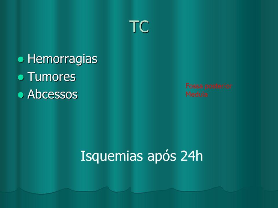 TC Isquemias após 24h Hemorragias Tumores Abcessos Fossa posterior