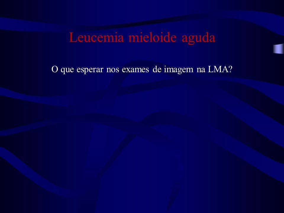 Exames de leucemia