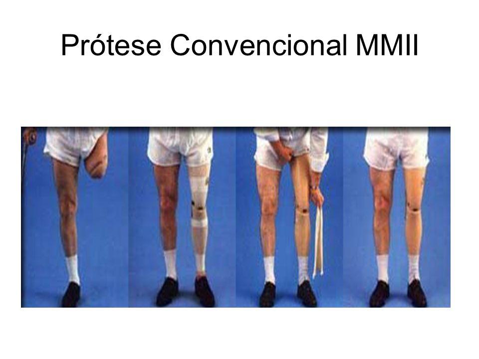 Prótese Convencional MMII