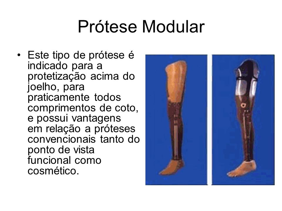Prótese Modular