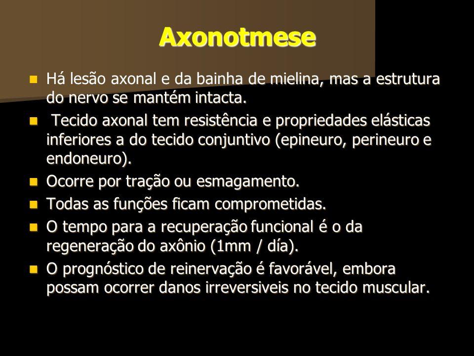 Axonotmese Há lesão axonal e da bainha de mielina, mas a estrutura do nervo se mantém intacta.