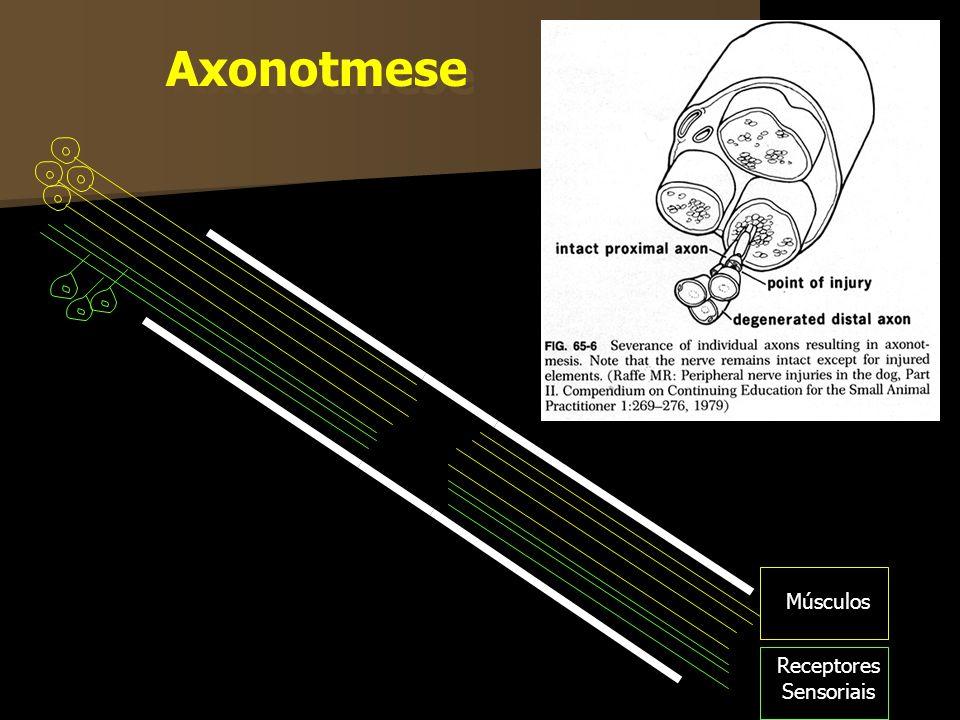 Axonotmese Músculos Receptores Sensoriais