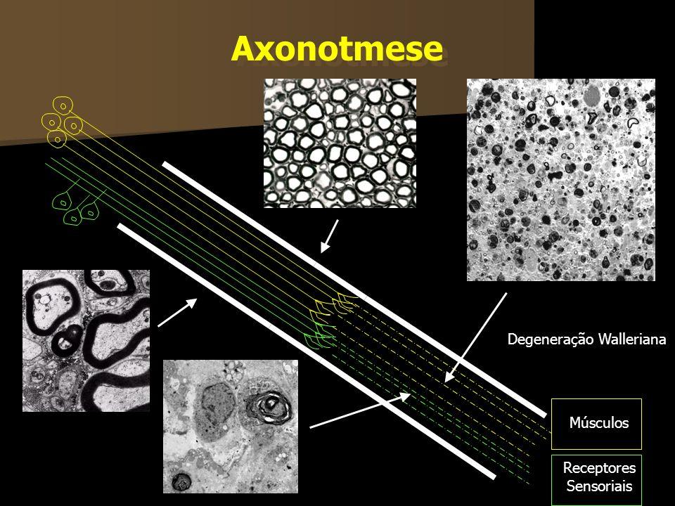 Axonotmese Degeneração Walleriana Músculos Receptores Sensoriais
