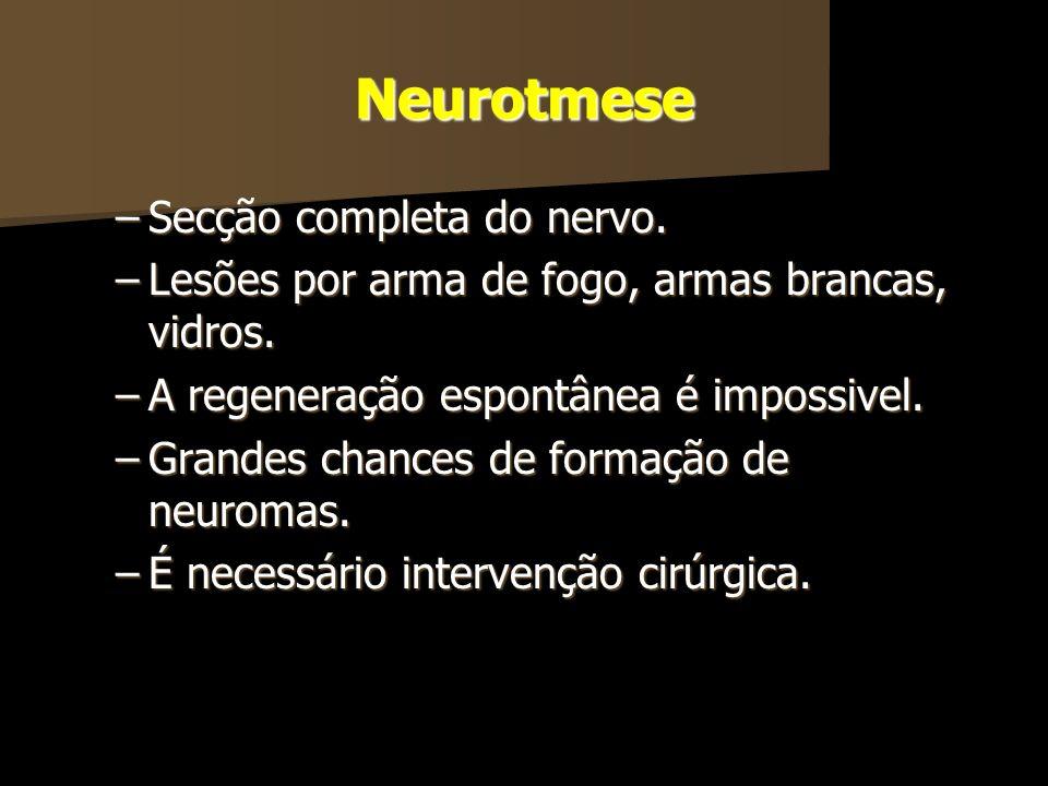 Neurotmese Secção completa do nervo.