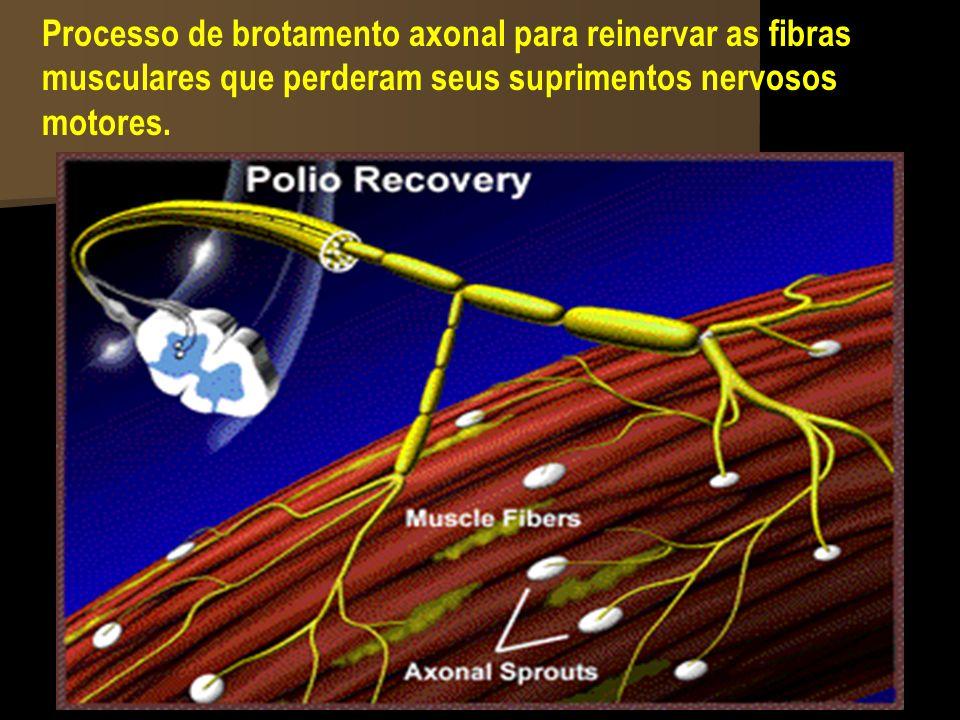 Processo de brotamento axonal para reinervar as fibras musculares que perderam seus suprimentos nervosos motores.