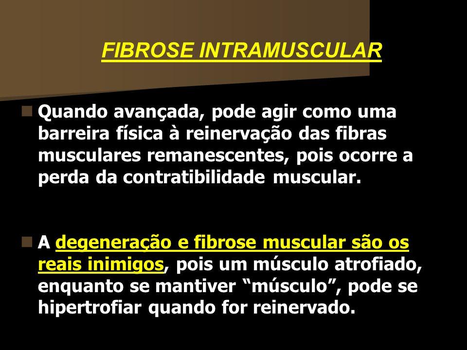 FIBROSE INTRAMUSCULAR