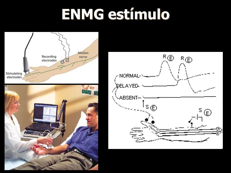 ENMG estímulo