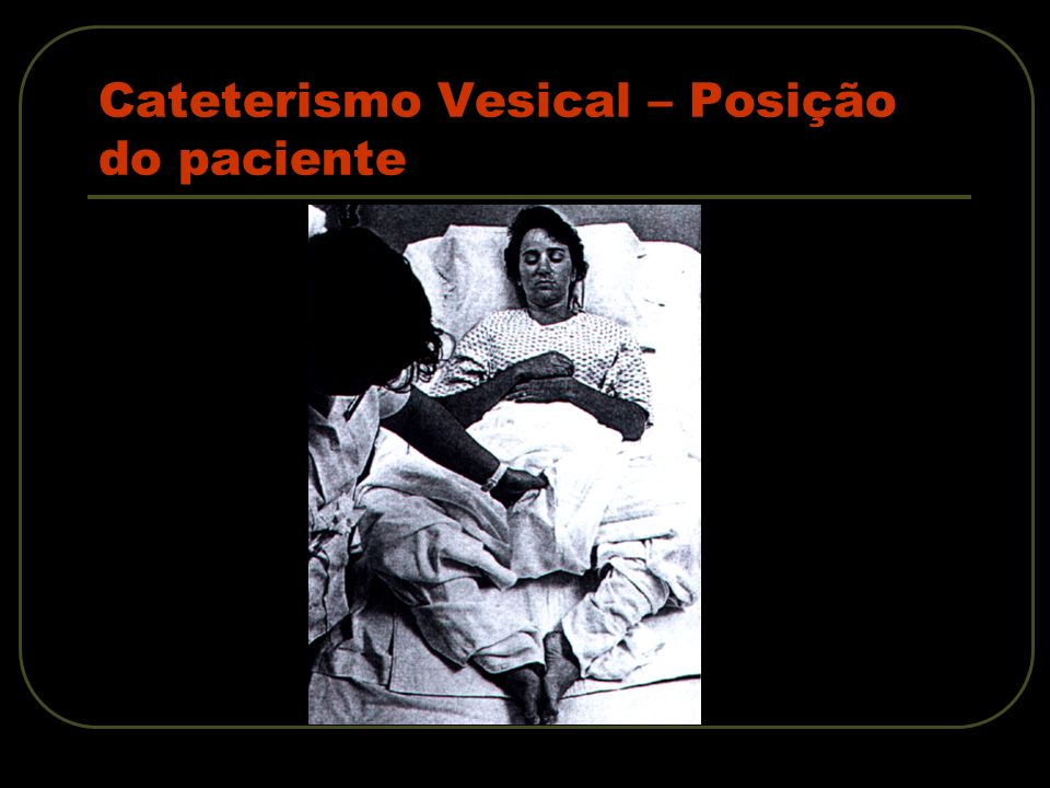 Cateterismo Vesical – Posição do paciente