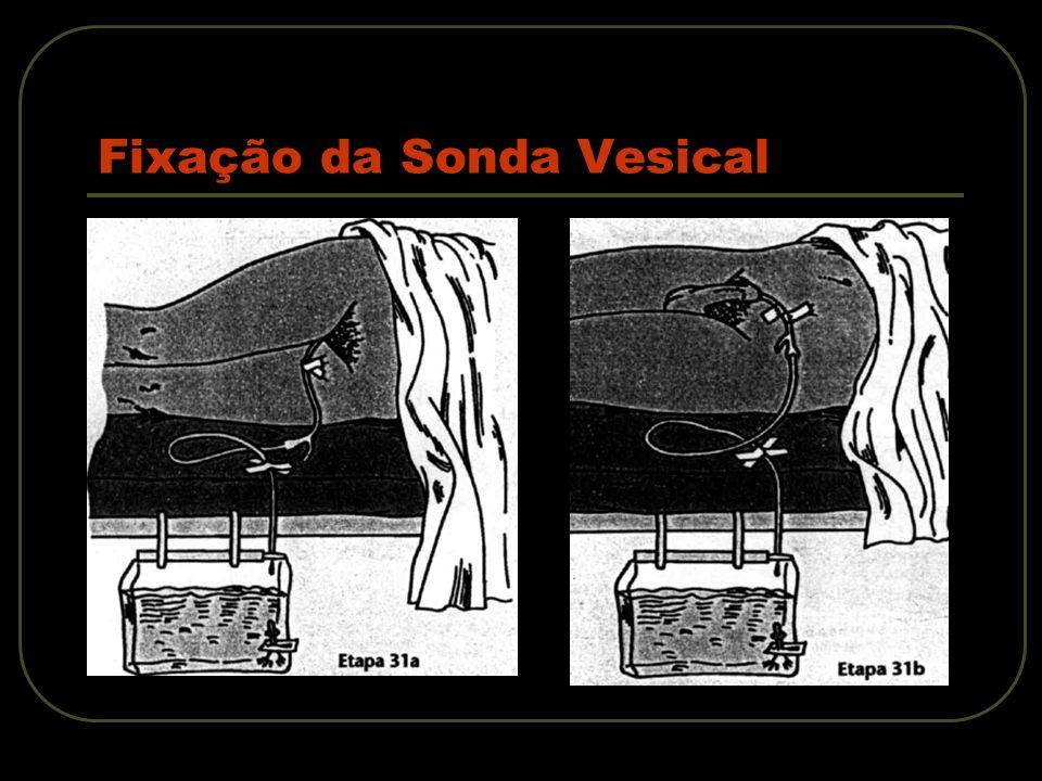 Fixação da Sonda Vesical