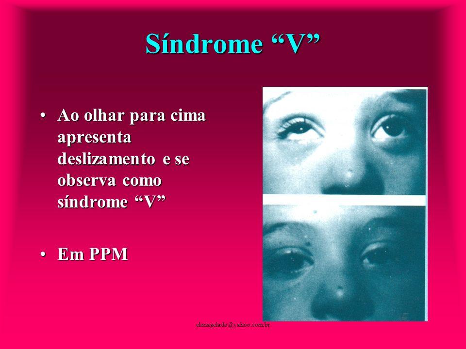 Síndrome V Ao olhar para cima apresenta deslizamento e se observa como síndrome V Em PPM.
