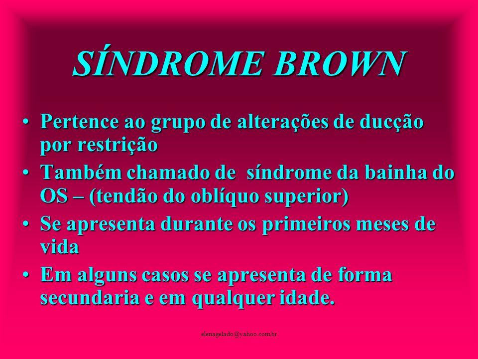 SÍNDROME BROWN Pertence ao grupo de alterações de ducção por restrição