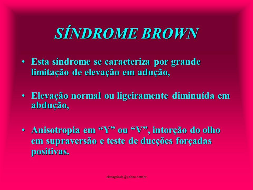 SÍNDROME BROWN Esta síndrome se caracteriza por grande limitação de elevação em adução, Elevação normal ou ligeiramente diminuída em abdução,