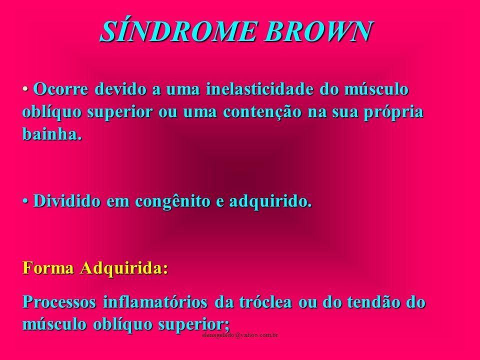 SÍNDROME BROWNOcorre devido a uma inelasticidade do músculo oblíquo superior ou uma contenção na sua própria bainha.