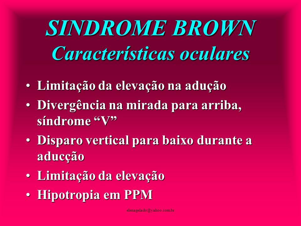 SINDROME BROWN Características oculares