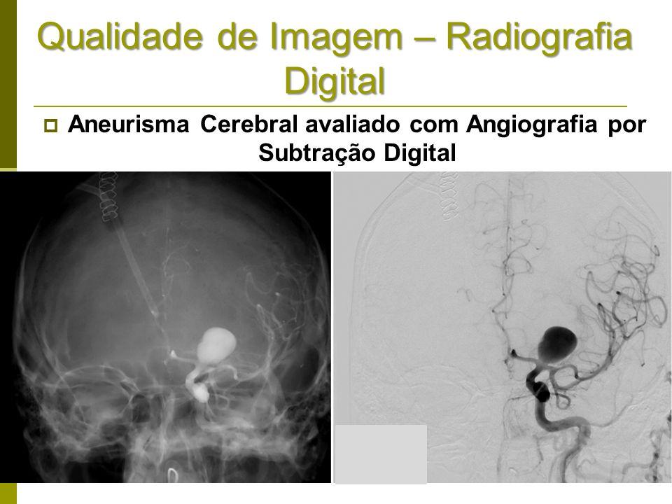 Qualidade de Imagem – Radiografia Digital